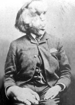 Joseph Carey John Merrick