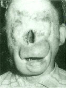 Raymond Charlie No Face Robinson